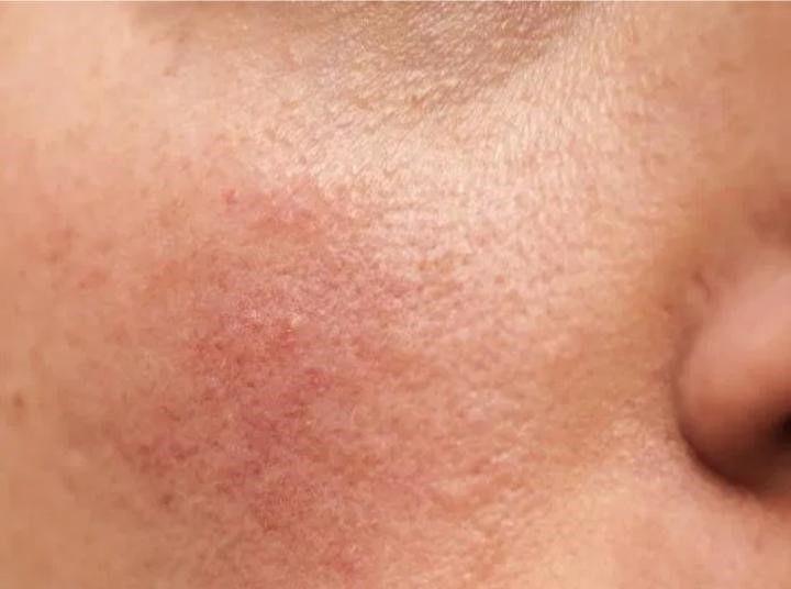 العد الوردي: الأسباب والأعراض والتشخيص والعلاج حالة طبية جلدية التهابية مزمنة تصيب الوجه غالبًا حب الشباب أو الإكزيما أو حساسية الجلد