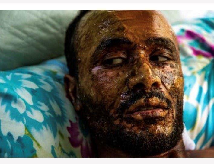 أحد ضحايا القصف التركي على شمال سوريا