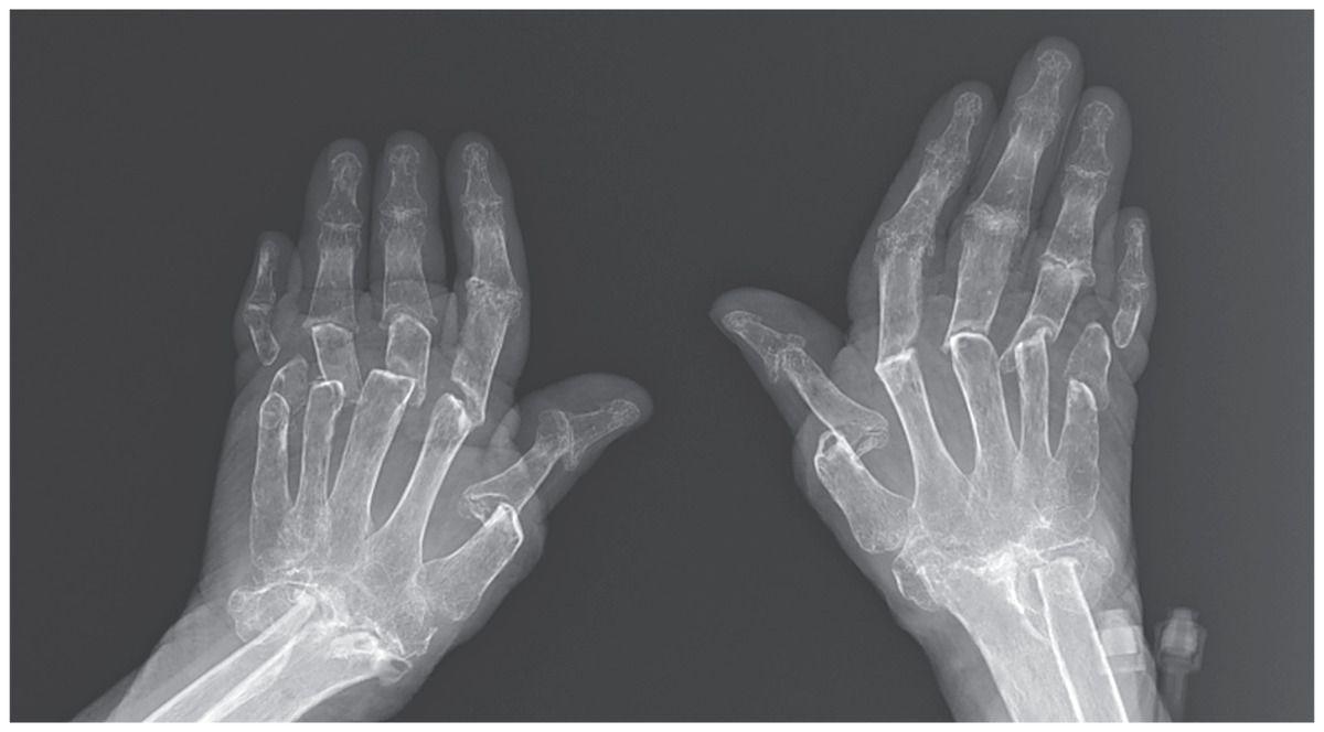 التهاب المفاصل الروماتويدي.. كل ما تحتاج إلى معرفته - الأسباب والأعراض والتشخيص والعلاج - مرض مناعي ذاتي يسبب ألم وضرر في المفاصل