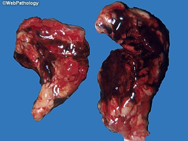 متلازمة ووترهاوس فريدركسن: الأسباب والأعراض والتشخيص والعلاج - قصور في الغدة الكظرية ناتج عن نزيف بها - الإصابة بالمكورات السحائية
