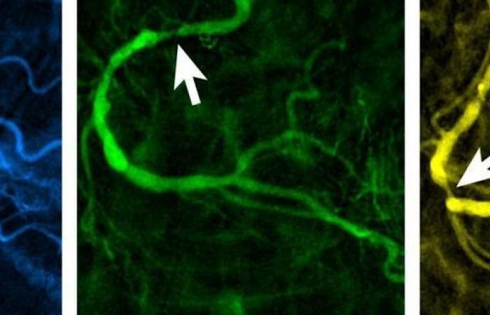 اكتشاف بروتين يعطي الأمل في الوقاية من أمراض الشرايين التاجي
