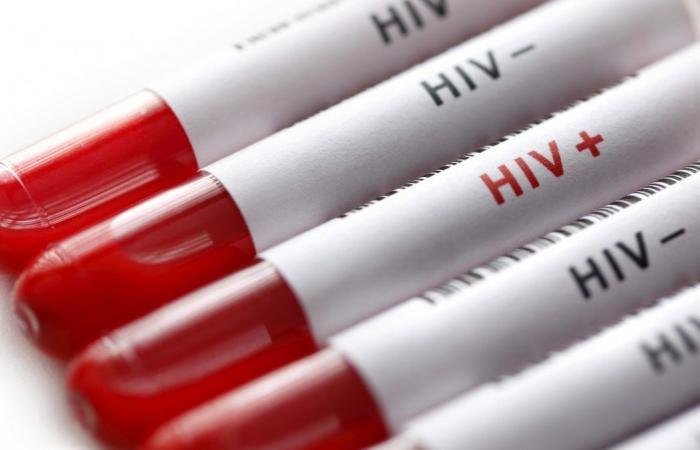 بحث جديد على الحمل الفيروسي لفيروس HIV يؤكد على ضرورة تحديث المبادئ التوجيهية للعلاج التي وضعتها منظمة الصحة العالمية