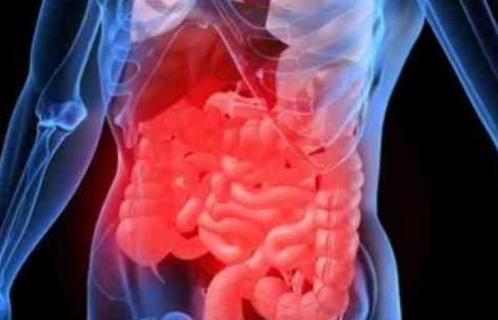 لماذا لا يهاجم جهازنا المناعي بكتيريا الأمعاء E. coli ويعتبرها جسمًا غريبًا ؟