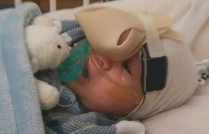 فيديو وصور.. جراحة نادرة لإعادة وجه طفل إلى طبيعته