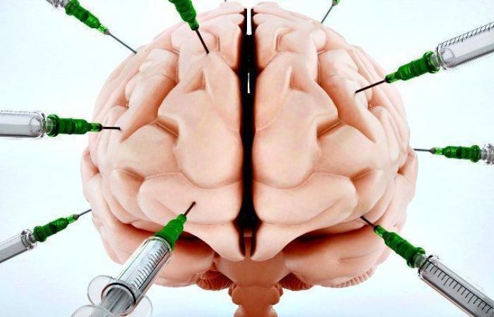 علماء الأعصاب يغرسون أقطابًا كهربائية في الدماغ ليعرفوا تأثيرها عليه