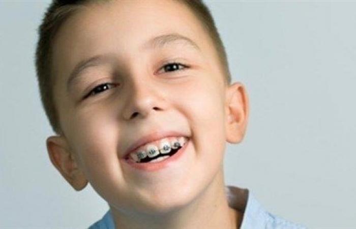 متى تكون دعامة الأسنان ضرورية للأطفال؟