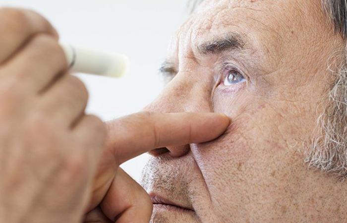 اكتشف العلماء رابطًا جوهريًا بين أمراض العين ومرض ألزهايمر