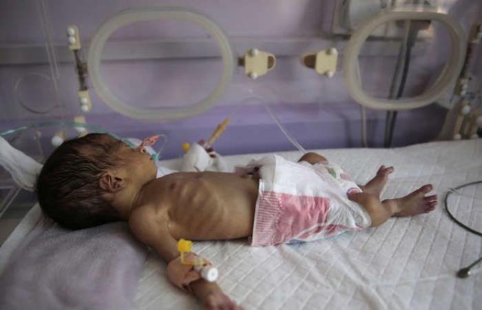 اليمن | الجوع يداهم اليمن