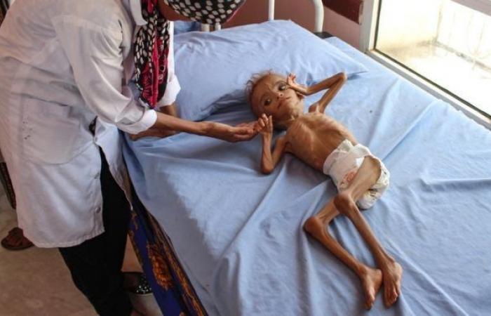 اليمن | صحيفة بريطانية تدق ناقوس الخطر بسبب الأوضاع الإنسانية باليمن