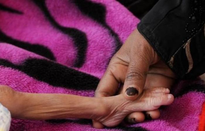 اليمن   المجاعة في اليمن أوشكت بلوغ مرحلة لا يمكن السيطرة عليها
