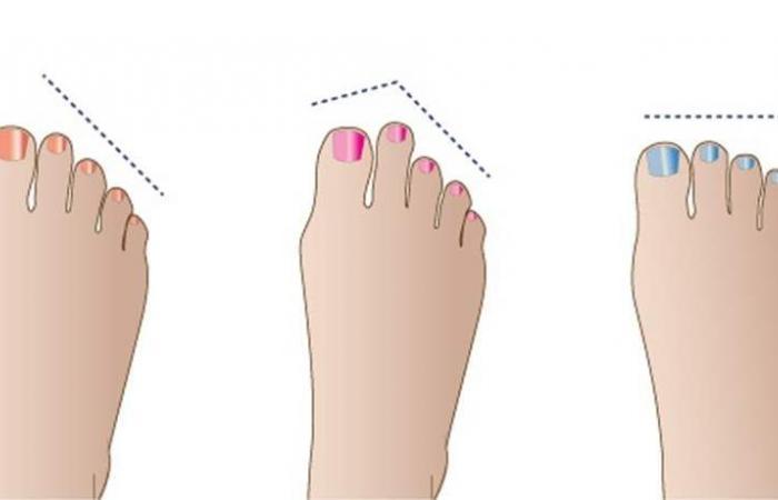 هذا ما يقوله طول إصبع قدمكِ عنكِ!