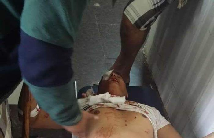 اليمن   بالصور.. مقتل امرأة وإصابة 12 مدنيا بقصف حوثي في تعز