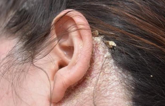انتبه.. فطريات قشرة الرأس قد تكون مؤشر مرض معوي