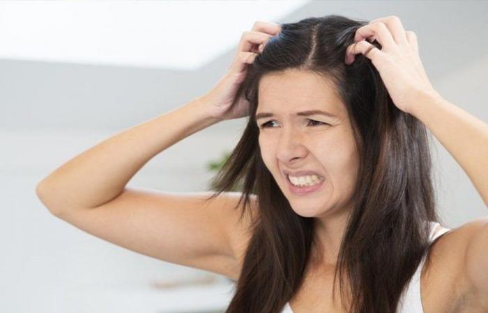 قشرة الرأس قد ترتبط بمرض خطير