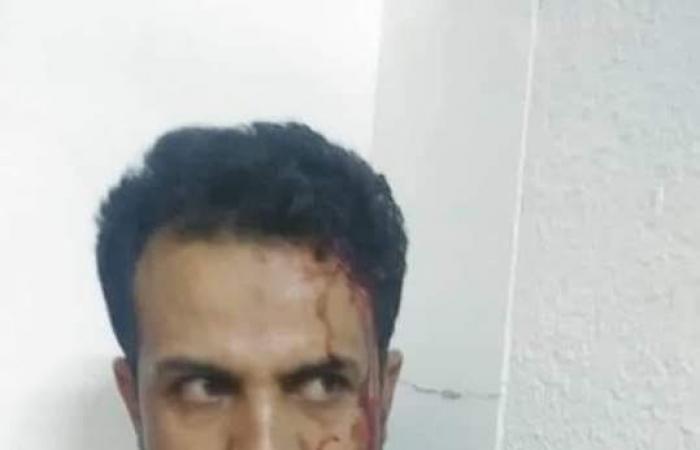 اليمن | دماء وغضب.. طبيب يتعرض لاعتداء حوثي وحشي