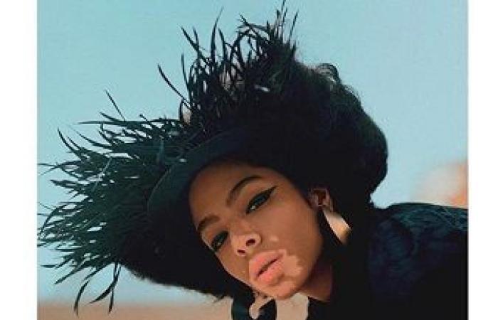 على خُطى ويني هارلو.. تعرفوا الى أول عارضة أزياء عربية مُصابة بالبهاق!