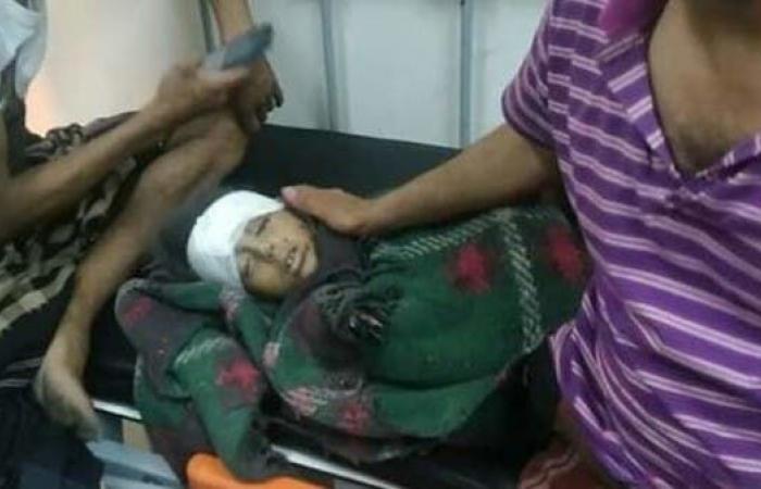 اليمن | صور مؤلمة.. آلة القتل الحوثية تحصد مزيدا من أطفال اليمن