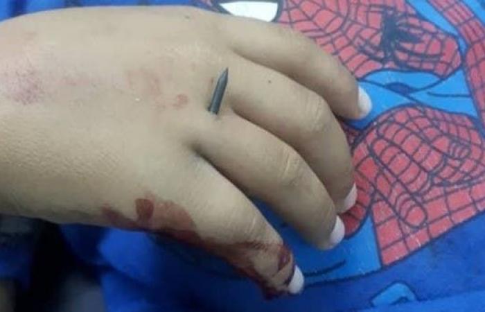 سوريا | شاهد مسامير مجنّحة اخترقت جسد طفل سوري بقصف للأسد
