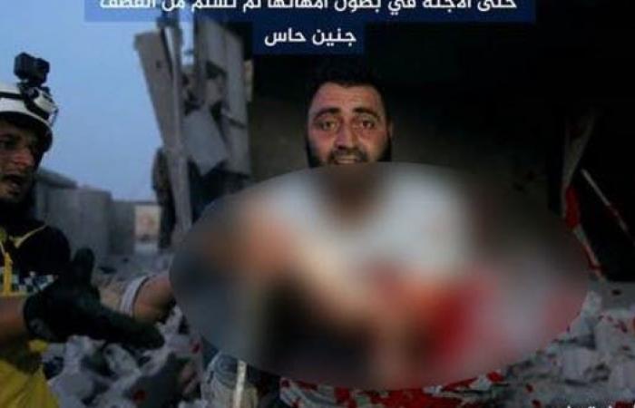 سوريا | جنين يخرج من بطن أمه بعد تمزقه بقصف إدلب السورية!