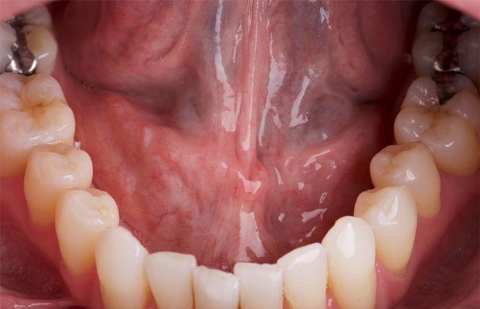 سرطان الفم: المراحل والأعراض والتشخيص