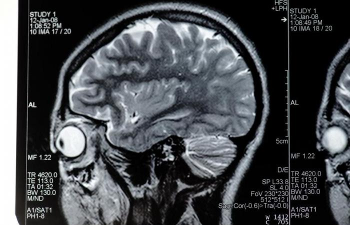 خلل التوتر العضلي Dystonia: الأسباب والأعراض والتشخيص والعلاج