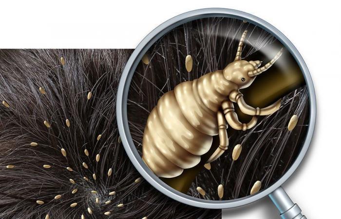 داء القمل Pediculosis: الأسباب والأعراض والتشخيص والعلاج