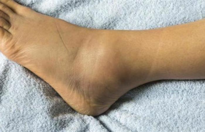 تعانين من تورم القدمين؟ إليكِ العلاج في 15 دقيقة فقط