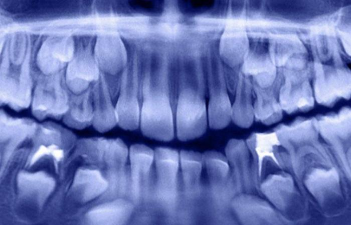 أطباء الأسنان قلعوا أكثر من 500 سن لطفل بعمر السبعة أعوام