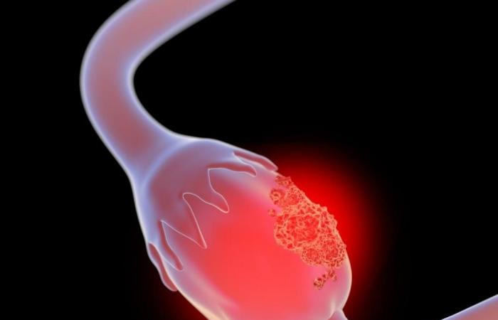 سرطان المبيض: ما هي الأعراض الباكرة وكيف تكتشفينها؟