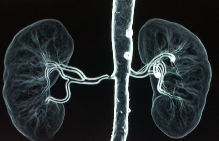 تضيق الشريان الكلوي Renal Artery Stenosis