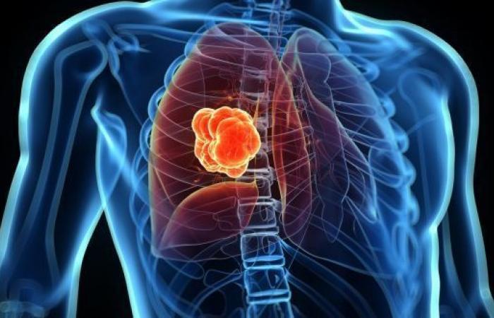 سرطان الرئة lung cancer: الأسباب والأعراض والتشخيص والعلاج