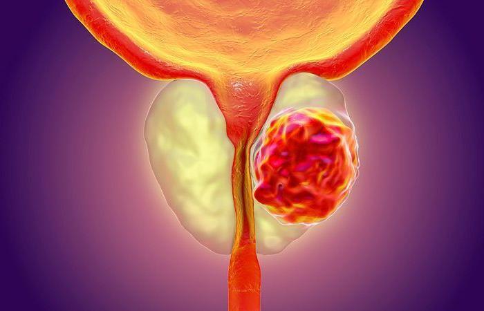اختبار جديد يكشف الأنواع الخطيرة من سرطان البروستات