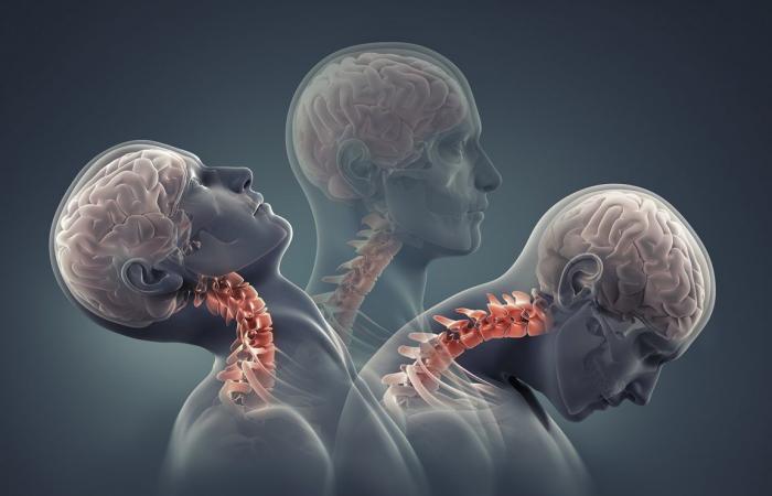 ارتجاج الدماغ: الأسباب والأعراض والتشخيص والعلاج