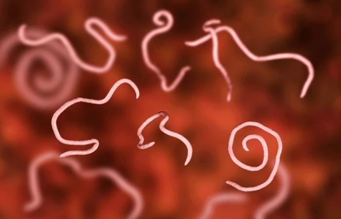 عدوى الدودة الدبوسية: الأسباب والأعراض والتشخيص والعلاج