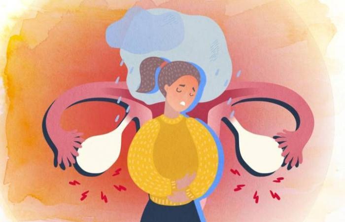 متلازمة ما قبل الطمث: الأسباب والأعراض والتشخيص والعلاج