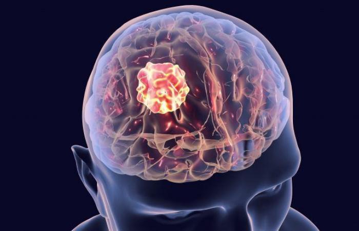خلايا الجلد تهاجم الأورام في الدماغ وتقلص حجمها