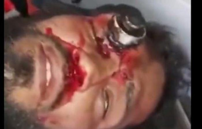 العراق | فيديو دامٍ.. إصابة قاتلة تخترق رأس متظاهر عراقي