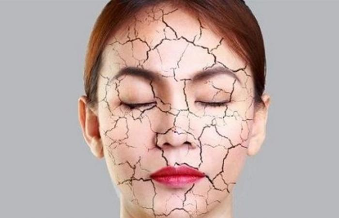 5 قواعد تبعد عن بشرتكِ شبح الجفاف في فصل الشتاء.. طبقيها
