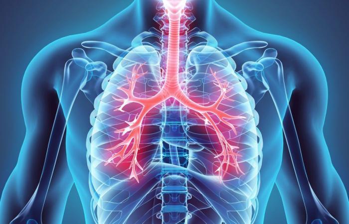 السحار السيليسي أو السيليكوز (داء الرئة الصواني)