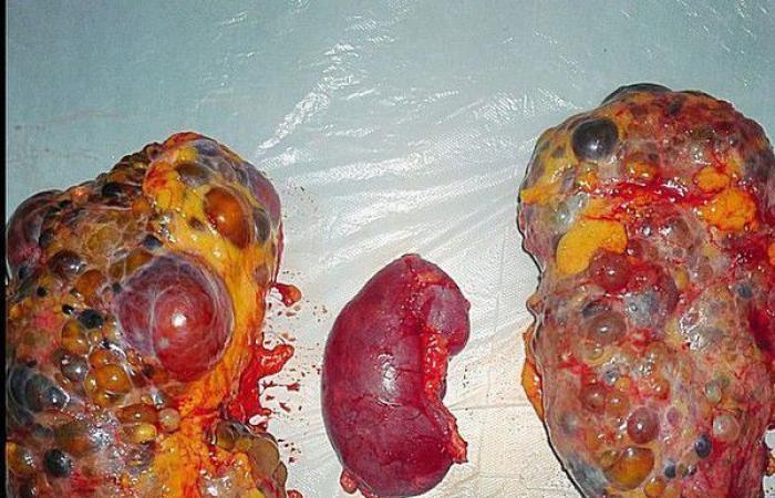داء الكلية متعددة الكيسات: الأسباب والأعراض والتشخيص والعلاج