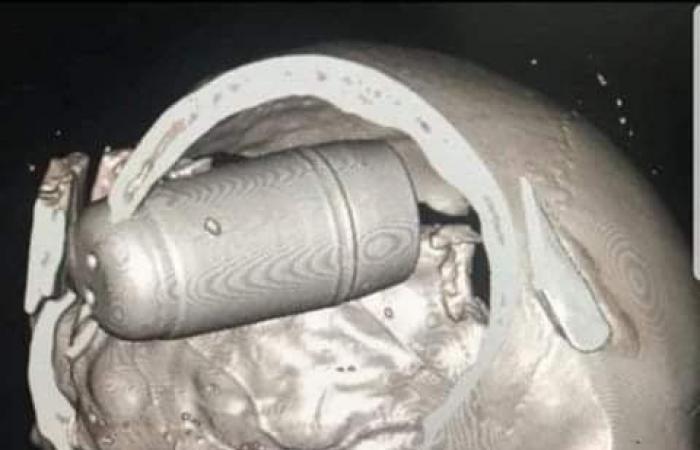 العراق | تحدٍ جديد لدعم حراك العراق.. تخيل قنبلة بحجم علبة صودا تضربك!