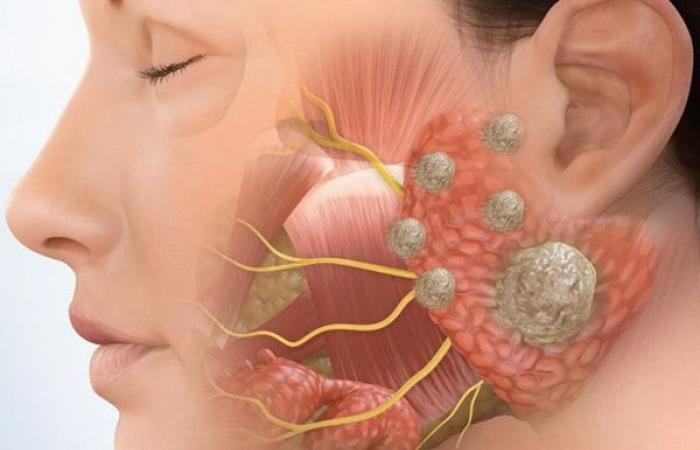 أورام الغدد اللعابية: الأسباب والأعراض والتشخيص والعلاج