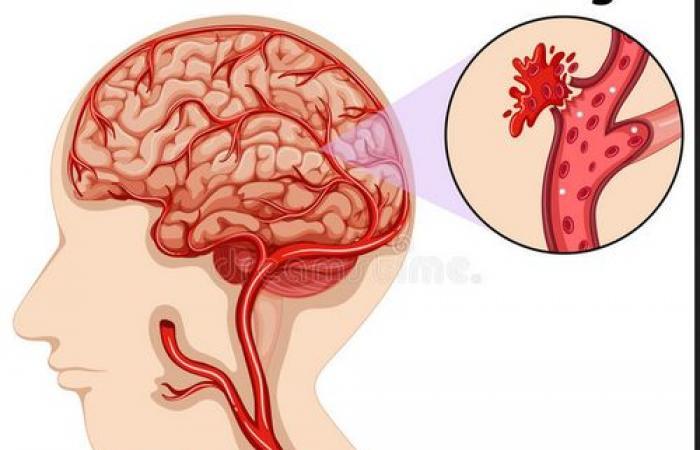 السكتة الدماغية النزفية: الأسباب والأعراض والوقاية والعلاج