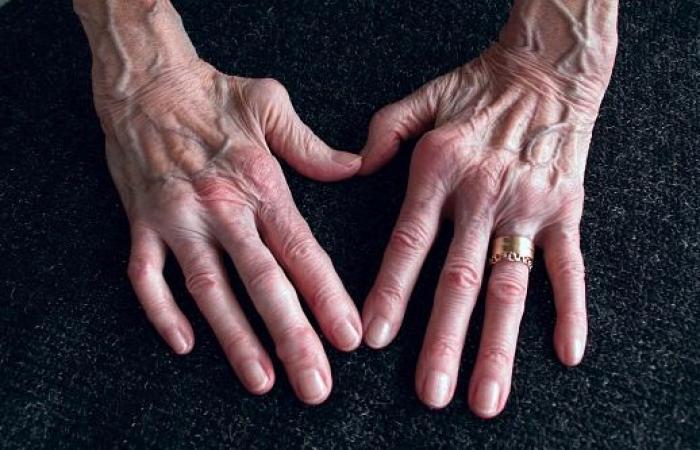 التهاب المفاصل الروماتويدي.. كل ما تحتاج إلى معرفته