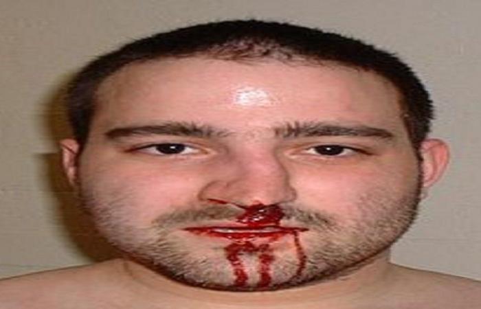 """كسرت أنفه بـ""""نطحة"""" (فيديو)"""