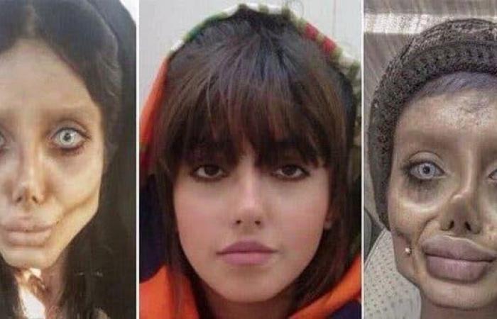 """إيران   """"أنجلينا جولي إيران"""" من الحجر للمستشفى.. كورونا فتك برئتيها"""