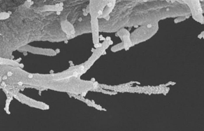 هكذا تنتشر مخالب كورونا داخل الجسم.. ,7 عقاقير سرطانية واعدة
