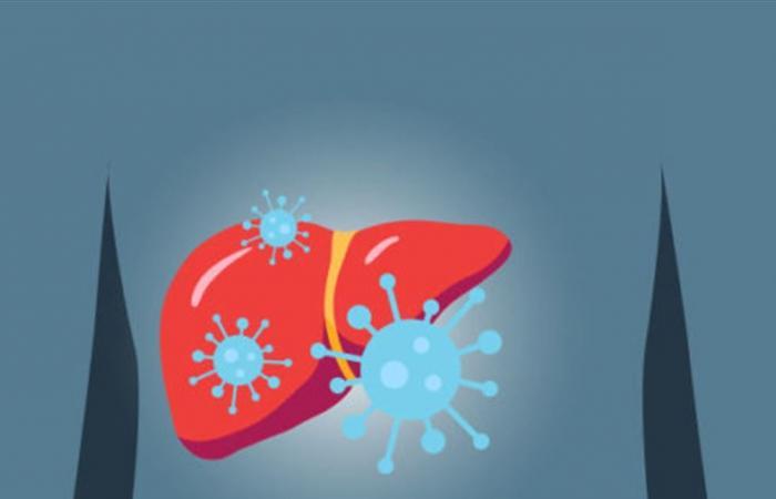 ما هو التهاب الكبد وما علاقته بكورونا؟