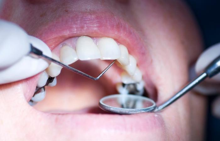 وداعا للأطقم والأسنان البديلة.. أسنانك ستنمو مجددا!