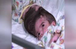 """أطباء ينجحون بفصل التوأم الملتصق من الرأس """"صفا ومروة"""""""